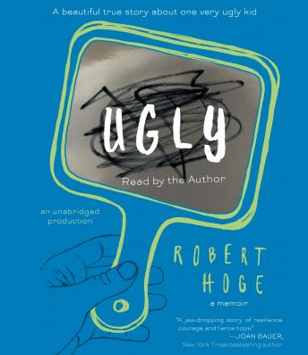 Ugly: A Beautiful True Story about One Very Ugly Kid, Robert Hoge