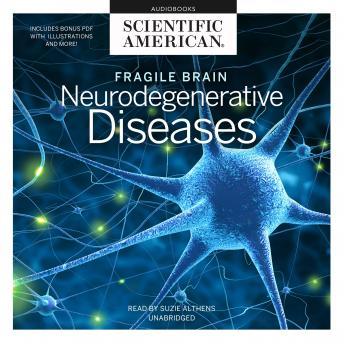 Fragile Brain: Neurodegenerative Diseases