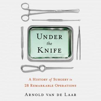 Download Under the Knife: A History of Surgery in 28 Remarkable Operations by Laproscopic Surgeon Arnold Van De Laar