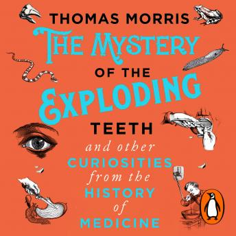 Download Mystery of the Exploding Teeth and Other Curiosities from the History of Medicine by Thomas Morris