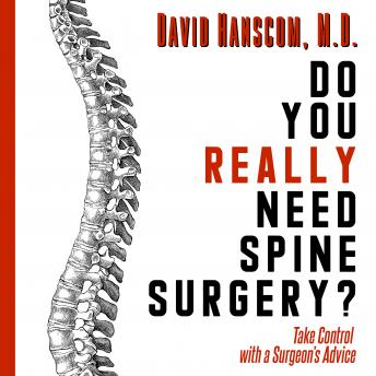 Download Do You Really Need Spine Surgery? Take Control with a Surgeon's Advice by David Hanscom, , M.D.