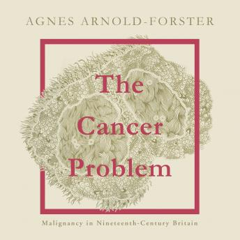 The Cancer Problem: Malignancy in Nineteenth-Century Britain