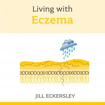 Living with Eczema, Jill Eckersley
