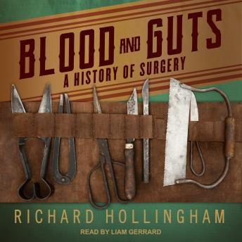 Download Blood and Guts: A History of Surgery by Richard Hollingham
