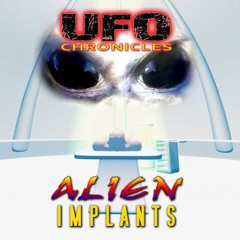 UFO Chronicles - Alien Implants