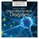 Fragile Brain: Neurodegenerative Diseases Audiobook